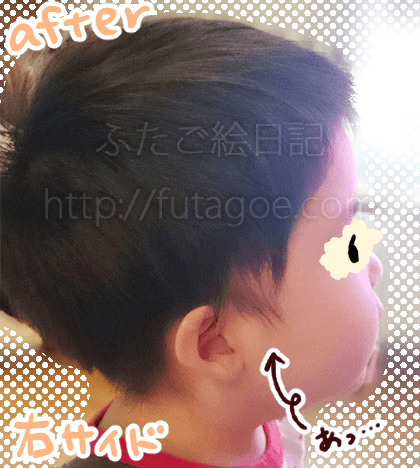 幼児バリカン髪型10